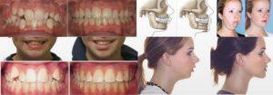 Где и как сделать операцию на челюсть 89