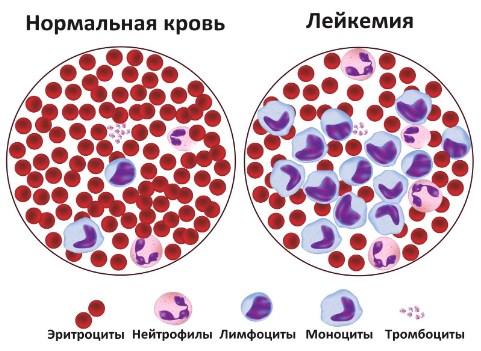 Лейкемия, или лейкоз, рак крови