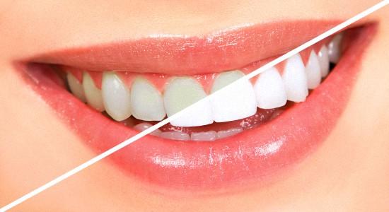 Причины отбелить зубы