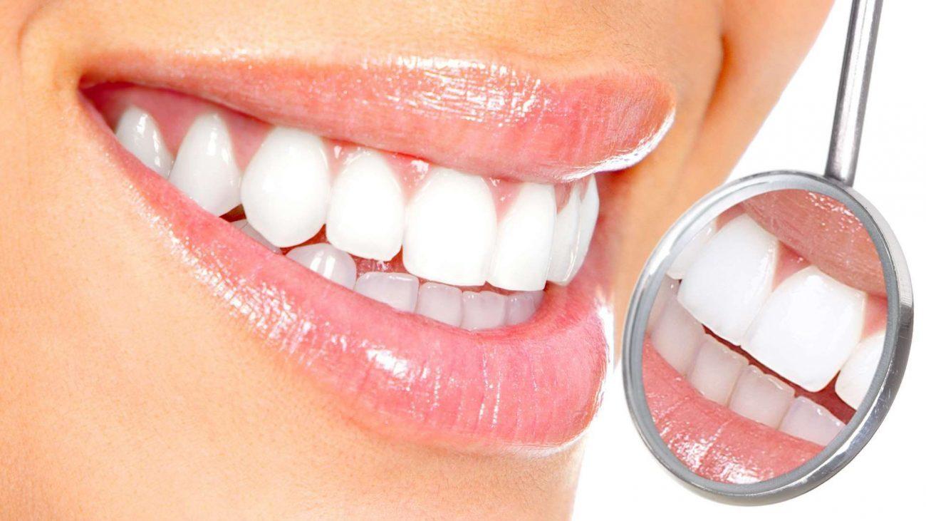 Возможно ли быстро отбелить зубы