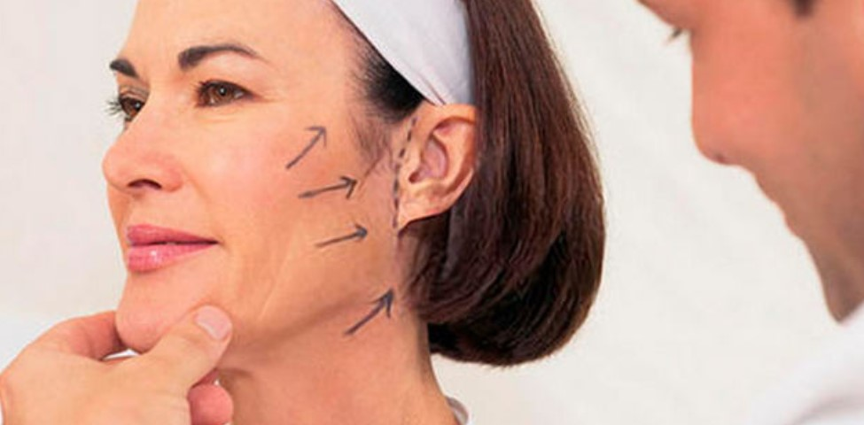 Подтяжка лица методом SMAS